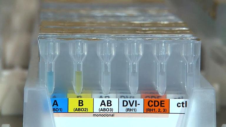Анализатор для определения группы крови и резус фактора железодефицитная анемия анализ крови пример