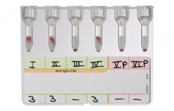 Скрининг антител